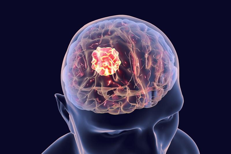 Cancer Brain