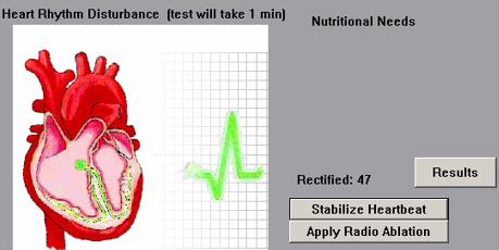 Intervene 4 heart failure
